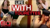 This woman lives with the worst degree of Tourette Syndrome