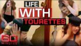 Tato žena žije s nejhorším stupněm Tourettovým syndromem