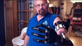 The Real Bionic Man