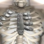 Τρισδιάστατα τυπωμένα πλευρά για έναν ασθενή με καρκίνο